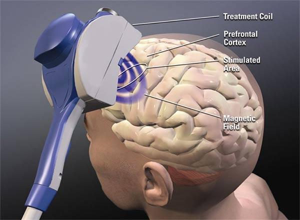 нейромодуляция и стимуляция мозга