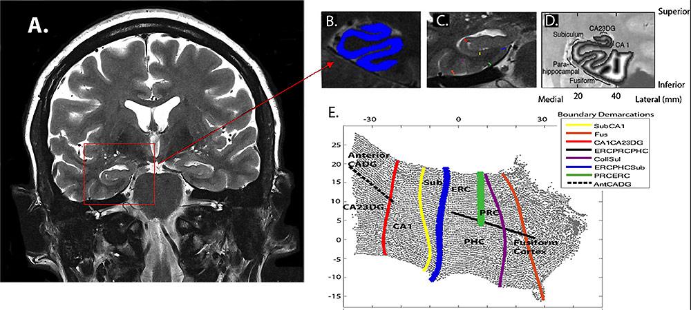 нейроисследование памяти