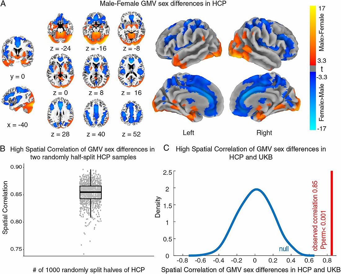 объем серого вещества в мозге мужчин и женщин