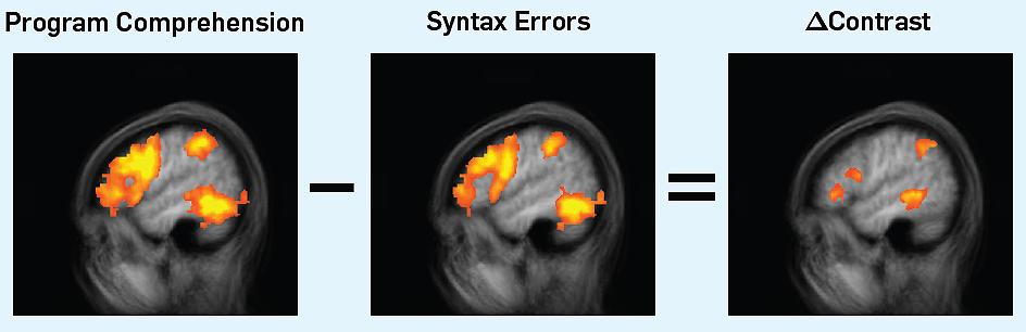 активность мозга во время программирования